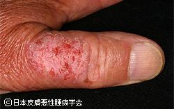 皮膚癌について